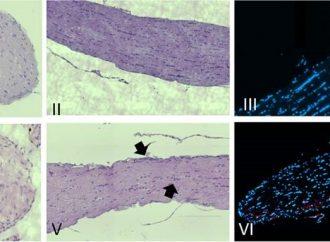 Estudio de Bar-Ilán: bacterias estresadas podrían desencadenar una respuesta autoinmune