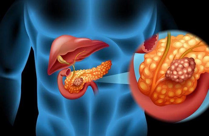 Equipo médico de Israel desarrolla tratamiento para el cáncer de páncreas
