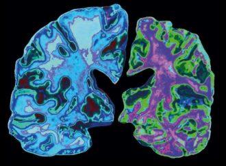 <strong>Salud mental.</strong> Un estilo de vida saludable puede contrarrestar el riesgo genético de la enfermedad de Alzheimer