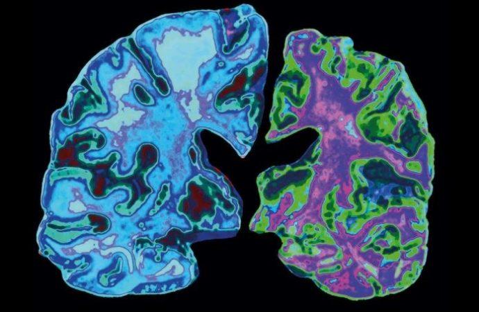 Un estilo de vida saludable puede contrarrestar el riesgo genético de la enfermedad de Alzheimer