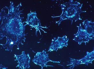 "Descubren cómo deshabilitar las células cancerosas ""Natural Killer"""