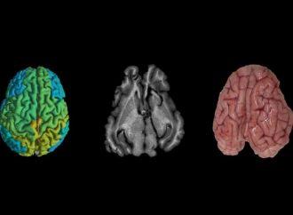 La técnica de imagen israelí podría ayudar a los médicos a predecir el Alzheimer y el cáncer