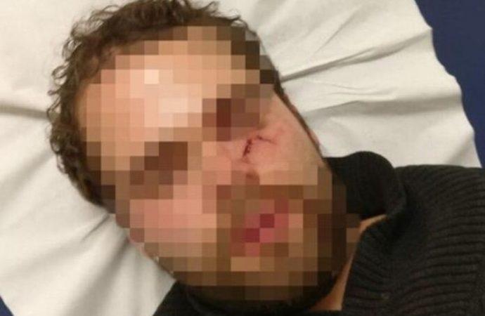 París: israelí golpeado hasta dejarlo inconsciente