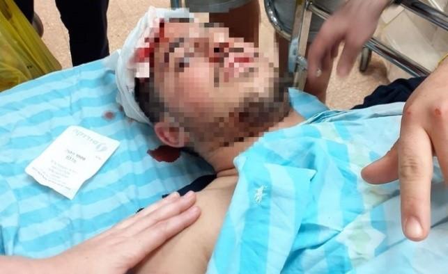 Dos bajurim de Yeshivá brutalmente golpeados por una pandilla violenta de beduinos