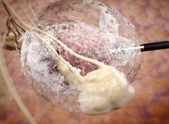 <strong>Ataca sólo a las células malignas.</strong> Startup israelí desarrolla tecnología para tratar tumores sólidos internos