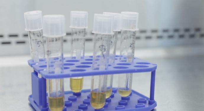 La prueba de la vacuna contra el coronavirus comenzará el lunes