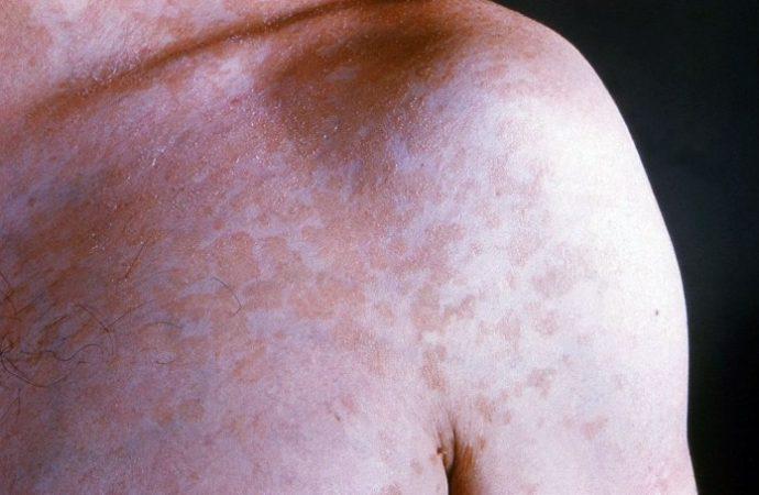 Síntomas cutáneos de COVID-19: Sí, hay más de uno