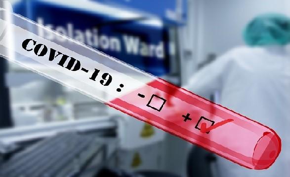 ¿Por qué algunos países tienen tasas de mortalidad por virus mucho más altas que otros?