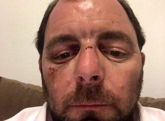 Hombre de Midwood atacado mientras caminaba hacia Shul